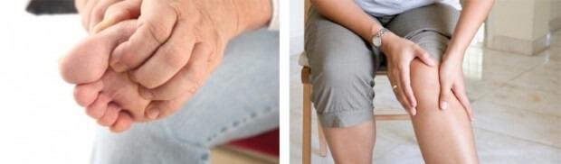 зуд ног у диабетика