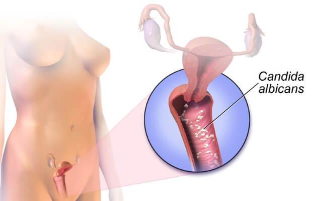 Зуд, жжение в интимной зоне у женщин: причины. Лечение зуда в интимной зоне в домашних условиях. Зуд в интимной зоне при беременности