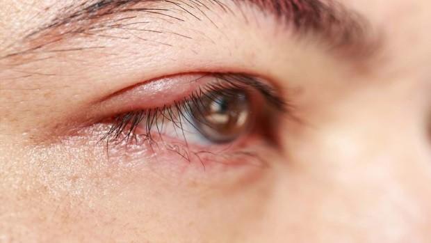 Чешутся веки глаз причины и лечение